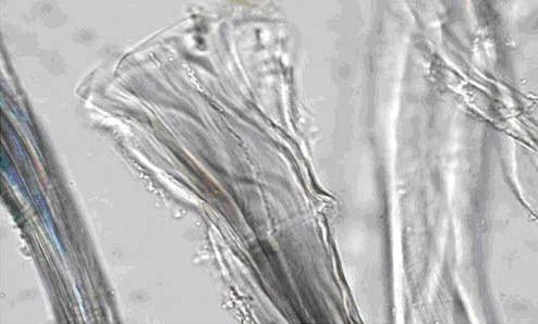 <dl><dt>Tela original de <em>El Coloso</em></dt><dd>Aspecto característico del lino tras añadir a las fibras el reactivo de Schweitzer (500 aumentos)</dd></dl>