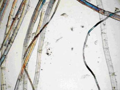 Tela original deEl ColosoVista longitudinal de varias fibras a 200 aumentosTodas ellas tienen la estructura característica del lino y son de diversos grosores
