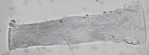 Tela de forraciónAspecto característico del lino tras añadir a las fibras el reactivo de Schweitzer (500 aumentos)